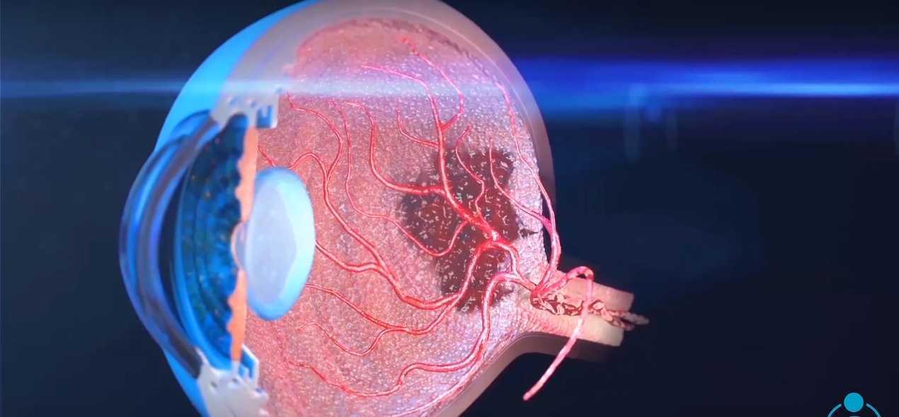 Retinal Ischemia