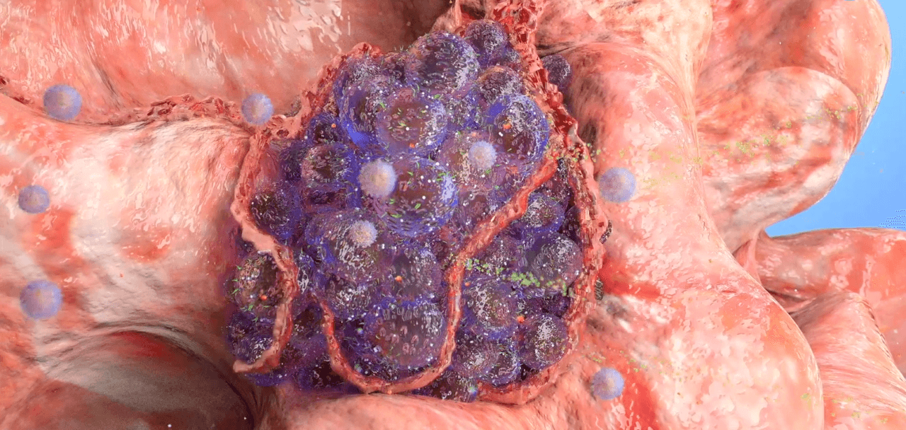 Cancer development medical video