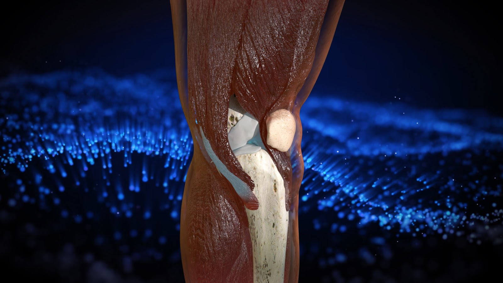Knee Cartilage Regeneration