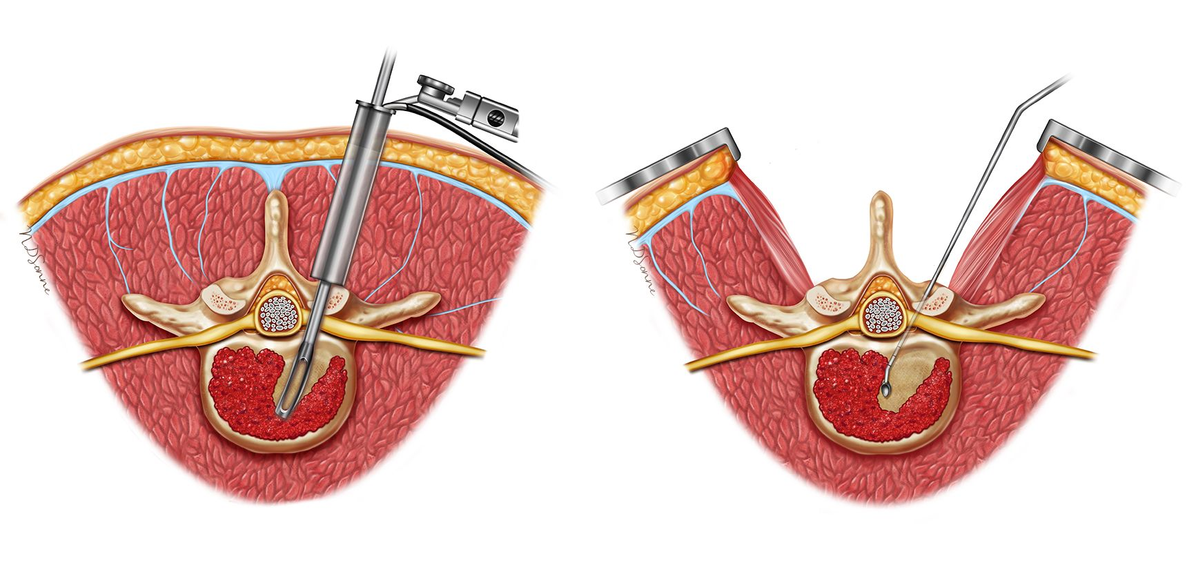 Introducing our new medical Illustrator – Olga Kurkina
